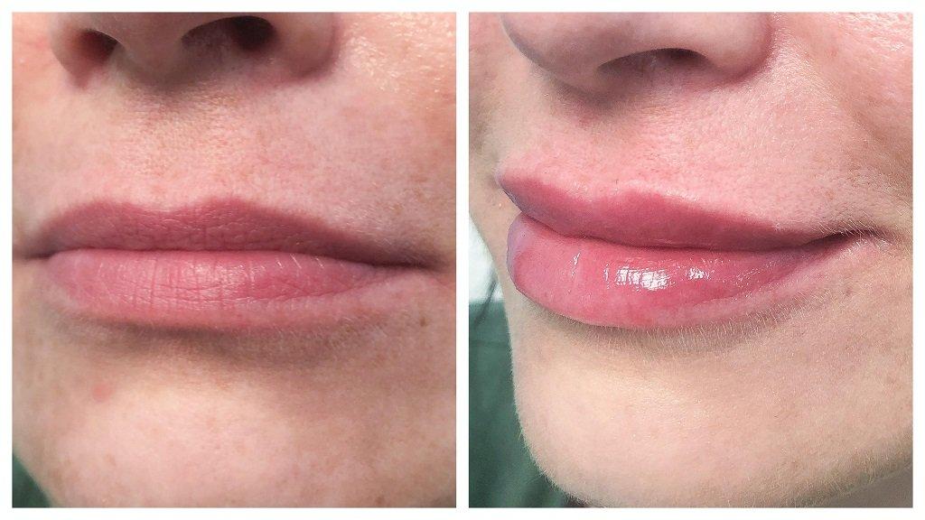 wypełnianie ust - przed i po